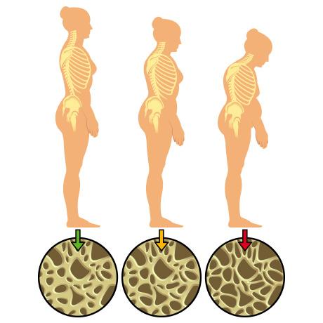 年齢とともに増加する骨粗鬆症